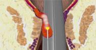 Hemorrages LHP laser treatment LHP  (Laser hemorrhoidoplasty)