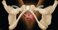 Nietrzymanie moczu u kobiet leczenie taśmą  TOT