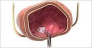 Bladder tumors-  Diode laser removal EVOLVE 980 nm