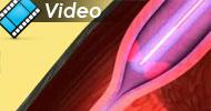 ELVeS&reg; PainLess <br />Eine einzigartige Komplettlösung zur Behandlung von Veneninsuffizienz...