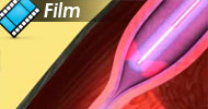 �ylaki ko�czyn dolnych Laserem ELVeS® PainLess